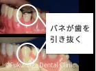 バネの付いている入れ歯