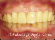 仮歯や仮義歯を入れて整えた画像