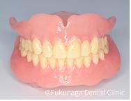 上下顎同時印象による総義歯