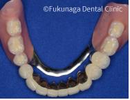 右左両側におよぶ大きな入れ歯(コーヌステレスコープ)