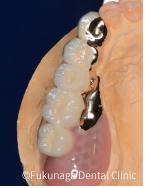 片側のみの小さい入れ歯(リーゲルテレスコープ)
