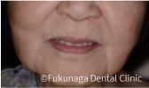 入れ歯を装着した状態(正面)