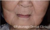 入れ歯を外した状態(正面)