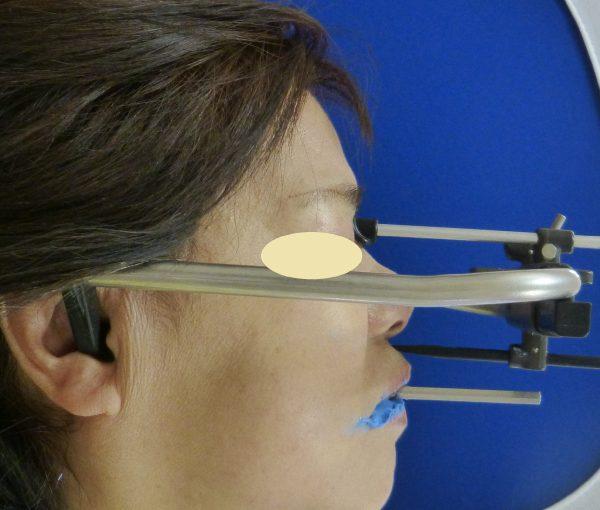 入れ歯の製作が難しい場合も対応