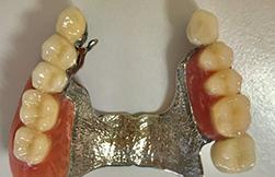 保険の入れ歯、ノンクラスプデンチャー、テレスコープ義歯の違い