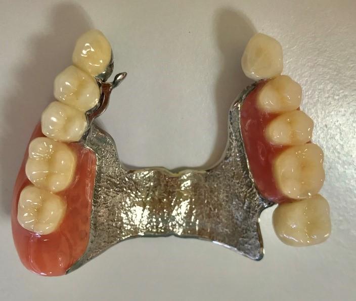 テレスコープ義歯2